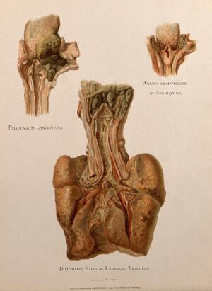 view Dissections of a diseased pharynx, larynx and tracheae: three figures. Chromolithograph by W. Gummelt, ca. 1897.