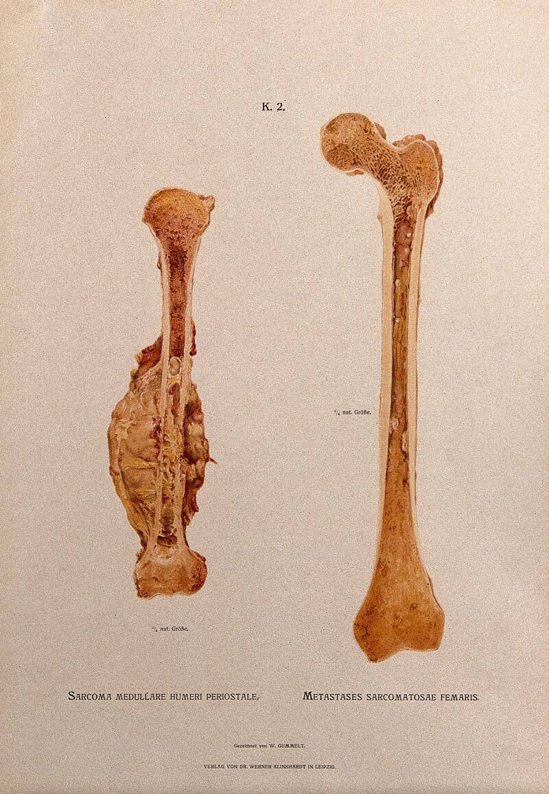 Sections Through Humerus And Femur Bones Two Figures The Left