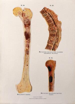 view Sections through diseased femor, spinal and humerus bones: three figures. Chromolithograph by W. Gummelt, ca. 1897.