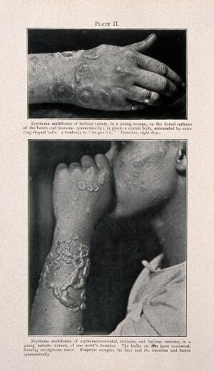 view The hand of a young woman suffering from erythema multiforme, with the arm, hand and face of a young woman of mixed-race, shown below, also displaying symptoms of the disease. Process print after a photograph, ca. 1905.