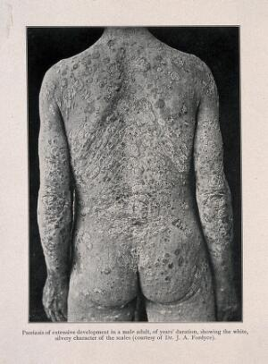view The back, buttocks and arms of a man suffering from psoriasis. Process print after a photograph, ca. 1905.