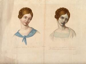 view A young woman of Vienna who died of cholera, depicted when healthy and four hours before death. Coloured stipple engraving.