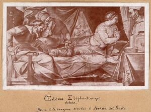 view A woman suffering from elephantiasis, being examined by three people. Reproduction of an oil painting by A. del Sarto.