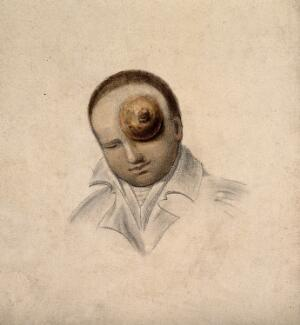 view A man with a large tumour covering his eye. Coloured lithograph.