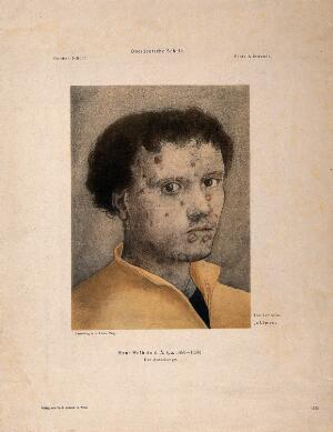 view A young man with an ulcerated face. Lithograph after H. Holb