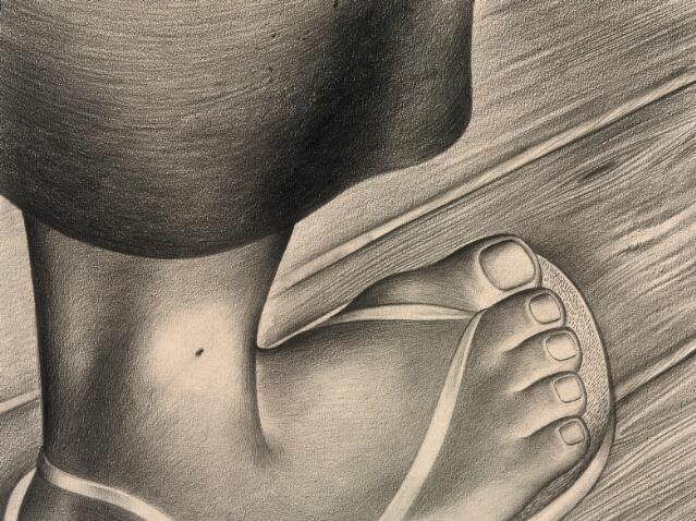 A close-up of a black spot on an ankle, indicating the beginning of the plague. Drawing by A.L. Tarter, 194-.