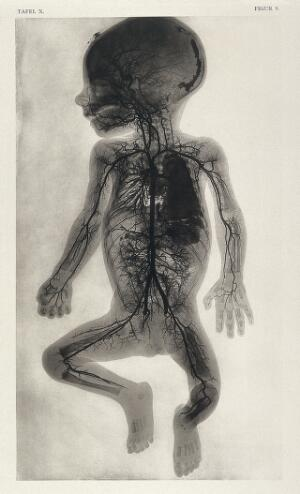 view An injected arterial vessel system of a 9 month old foetus. Collotype by Römmler and Jonas after a radiograph by G. Leopold and Th. Leisewitz, 1908.