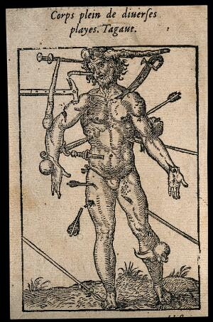 view Wound man showing all the weapons and points of injury. Woodcut.