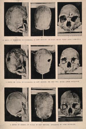 view Three trephinated skulls of people who may have suffered from headaches or epilepsy, Papua New Guinea. Halftone.