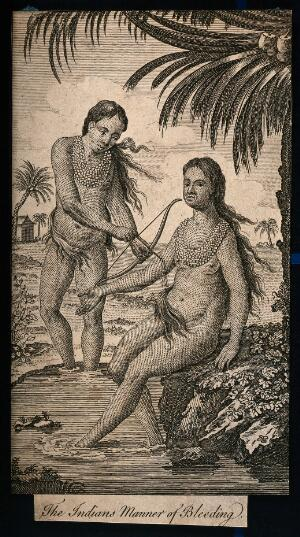 view A man bleeding a woman in her arm by using a bow and arrow. Etching.