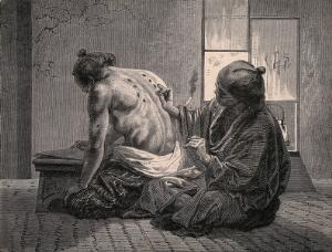view A Japanese physician applying moxa (a substance produced from leaves of various wormwoods) as a cautery: igniting it on the skin of a patient's back. Wood engraving.