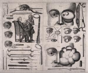 view A double sheet showing various ophthalmology instruments, eye growths, a cataract operation and other eye defects. Line engraving by R. Parr, 1743-45.