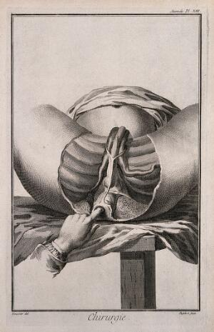 view Surgery: the examination of the perineum. Engraving with etching by A.J. Defehrt after L.-J. Goussier.