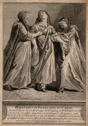 view M.F. du Chêne miraculously cured from a variety of ailments (dropsy, hemorrhaging, aches, and a disease of the lung) all interelated (?), at the tomb of F. de Paris. Engraving.
