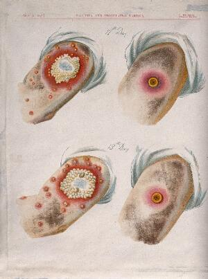 view A comparison between smallpox and cowpox pustules on the 12th and 13th days of the disease. Chromolithograph, 1896, after G. Kirtland.