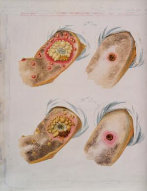 view A comparison between smallpox and cowpox pustules on the 14th and 15th days of the disease. Chromolithograph, 1896, after G. Kirtland.
