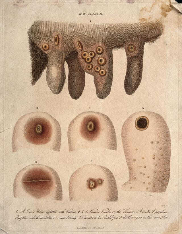 """PUSTULES"""" 