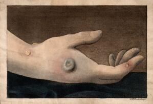 view A human hand with smallpox pustules. Coloured etching by W.T. Strutt.