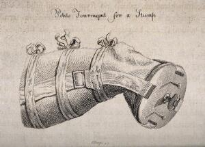 view An amputated leg in a tourniquet supported by a piece of wood that covers the end of the stump. Engraving by J. Bengo.