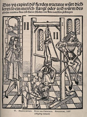 view A male patient is hanging by his feet from an apparatus, a large worm (?) is passing from his mouth into a bowl, assisted by a surgeon and two assistants. Process print after a woodcut, 1497.