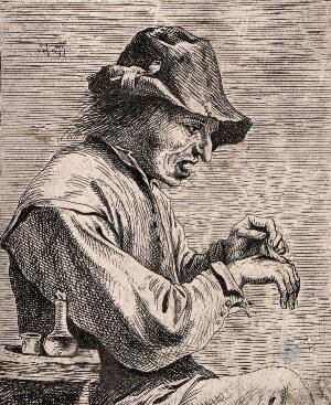 view A man removing a plaster from his hand. Etching attributed to D. Teniers, the younger.