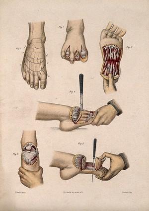 view Six cross-sections through a foot. Coloured lithograph by M. Hanhart after C. Heath after J.B. Léveillé.