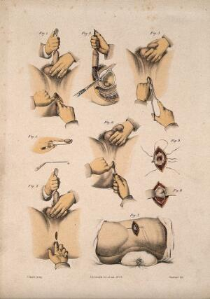 view Nine cross-sections through the male reproductive organs, urinary system and anus. Coloured lithograph by M. Hanhart after C. Heath after J.B. Léveillé.