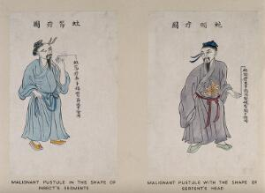 view A Chinese man displaying the symptoms of a malignant pustule on his finger. Coloured line block print by Chiang Yee, after a Chinese artist, 1920/1940?