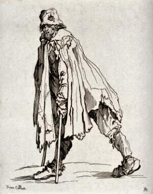 view A bearded beggar dressed in rags walking on two crutches. Etching possibly after J. Callot.