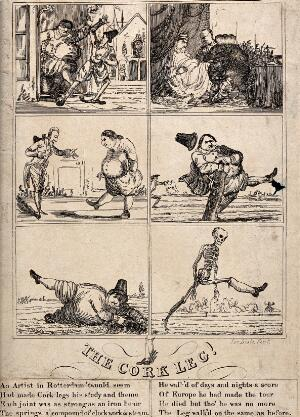 view Six scenes narrating the fate of a cork leg, the invention of a Dutch artist. Etching by Joe Lisle.