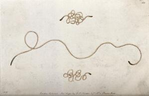 view A nematode worm. Coloured etching, ca. 1792.
