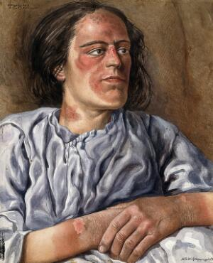 view A woman suffering from chronic pellagra with dermatitis on her hands, neck and face. Watercolour by A.J.E. Terzi, ca 1925.