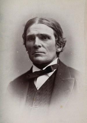 view Sir John Scott Burdon-Sanderson. Photograph by G. Jerrard, 1881.