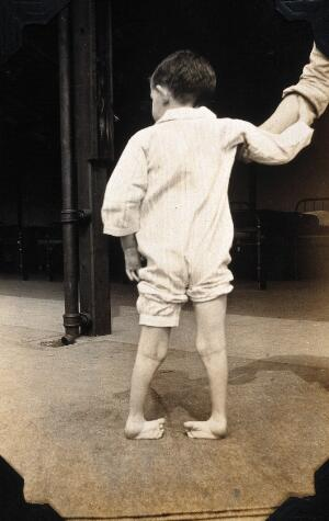 view St Nicholas' and St Martin's Orthopaedic Hospital, Pyrford, Surrey: a boy patient suffering with talipes. Photograph, c. 1935.