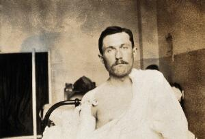 view Military Hospital V.R. 76, Ris-Orangis, France: male patient, infantry soldier from front line, with dressed wound on right shoulder. Photograph, 1916.