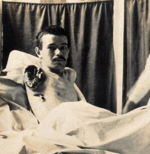 view Military Hospital V.R. 76, Ris-Orangis, France: man who lost his right arm at Verdun in 1st world war. Photograph, 1916.