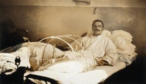 view Military Hospital V.R. 76, Ris-Orangis, France: soldier with amputation following leg wound, after fighting at Verdun in World War I. Photograph, 1916.