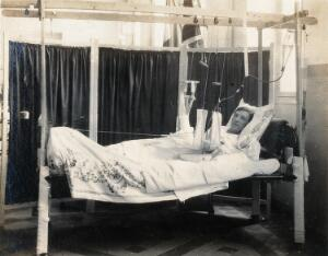 view Military Hospital V.R. 76, Ris-Orangis, France: soldier with arm in traction, wounded in 1st world war. Photograph, 1916.