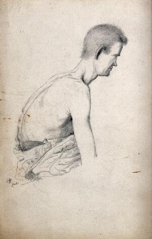 view A male with naked torso: side view of right shoulder. Drawing attributed to H.W. Berend, c. 1856.