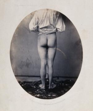 view A man, viewed from behind, with naked legs and buttocks. Photograph by L. Haase after H.W. Berend, 1860.
