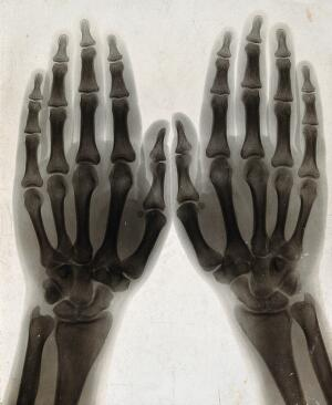 view Two hands, viewed through x-ray. Photoprint from radiograph after Sir Arthur Schuster, 1896.