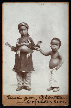 view A young Indian boy with a parasitic headless attachment. Photograph, 18--.