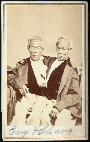 view Chang and Eng, conjoined twins, seated. Photograph, c. 1860.