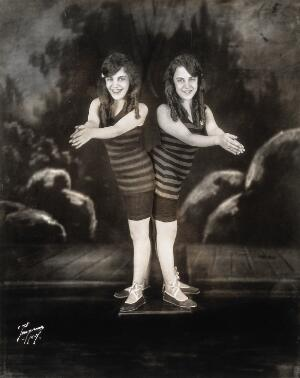 view Daisy and Violet Hilton, conjoined twins, wearing swimsuits, posing as though about to dive. Photograph, c. 1927.