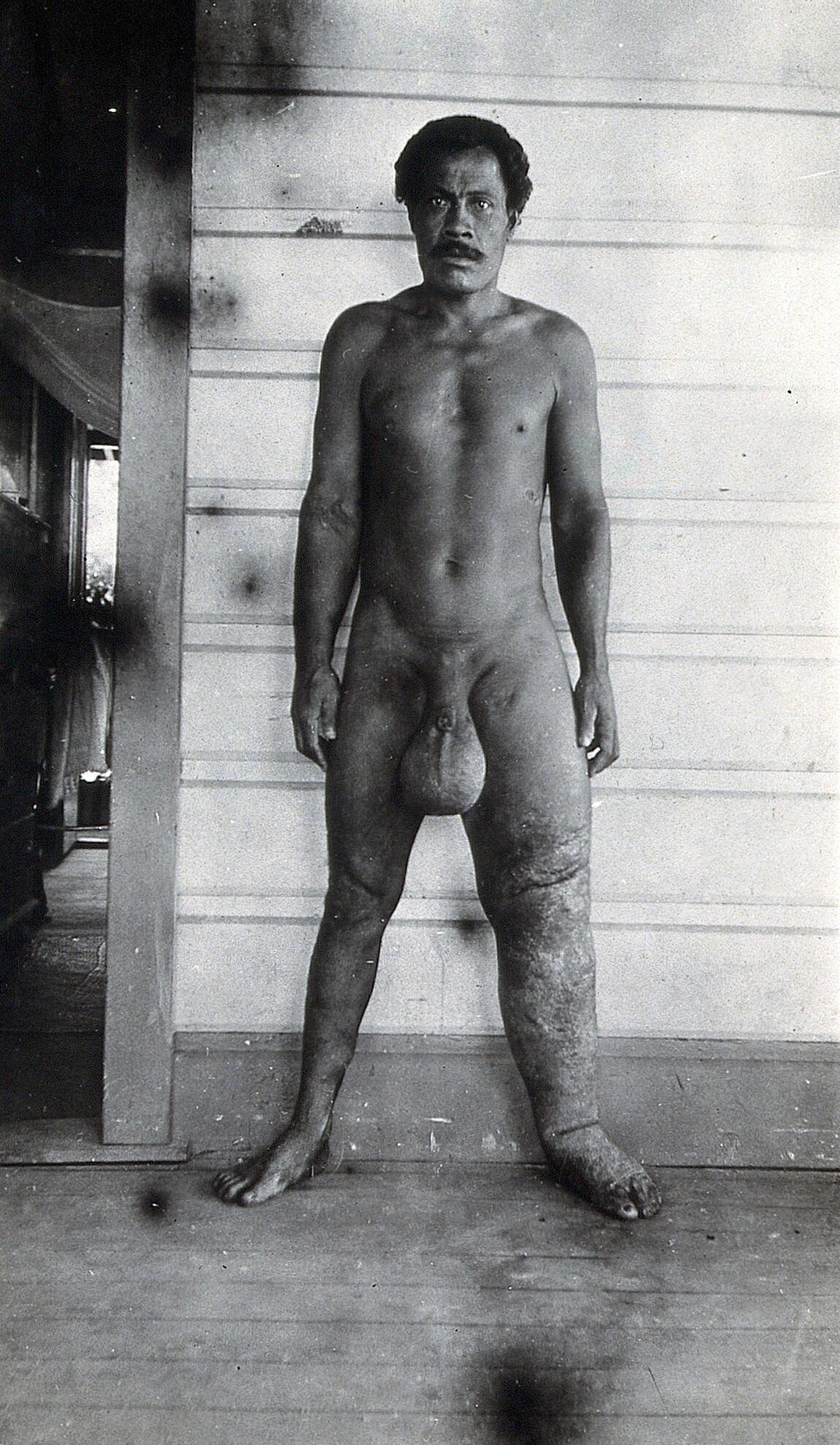 Standing Man Full Length Side View With Elephantiasis Of