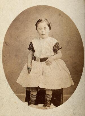 view A girl with Down's syndrome, sitting, wearing striped socks. Photograph.