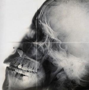 view X-ray, skull