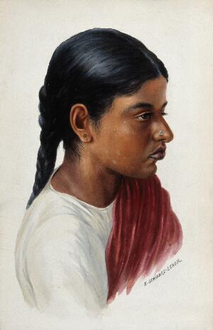 view Leprosy: a red patch on an Indian girl's face: a head and shoulders portrait in profile. Watercolour by E. Schwarz-Lenoir, 1920/1950 (?).