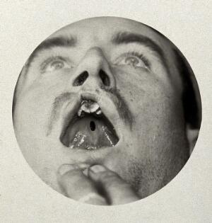 view Cleft palate: the open mouth of a man with a cleft palate. Photograph, 1917.