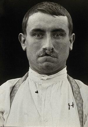 view Cleft palate: head and shoulders portrait of a man with a cleft palate. Photograph, 1917.